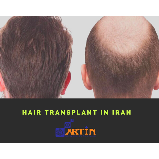 Iran-medical-tours--travelartin10